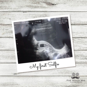 Sonogram Polaroid